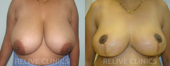 Before After Breast