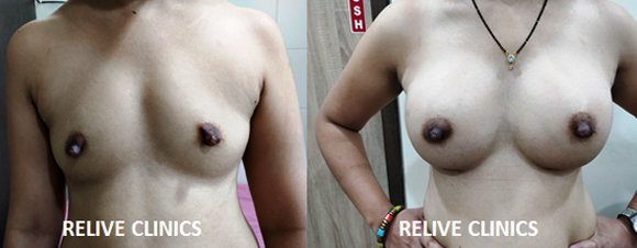 Before After Dupentren's Contracture
