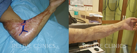 Before After Burn Surgery