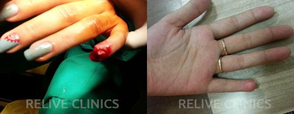 Before After Finger