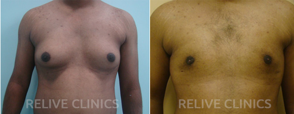 Before After Male Breast