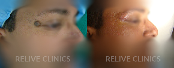 Before After Mole Removal