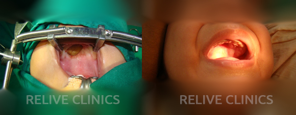 Before After Palatal cyst